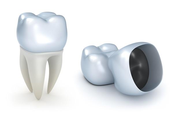 коронка на зуб диоксид циркония