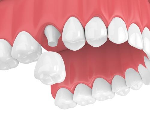 коронка на зуб цирконий керамика