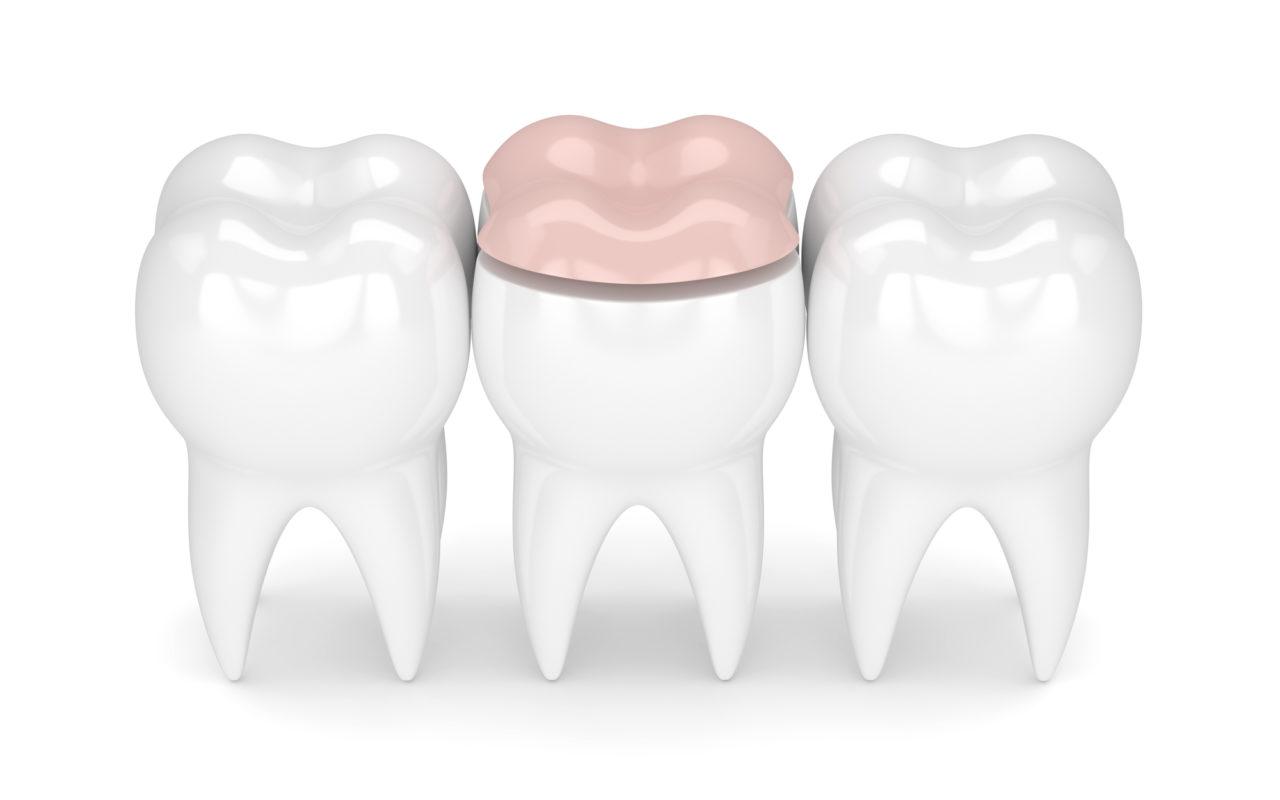Вкладка на зуб москва