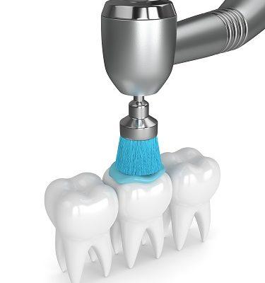 Чистка зубов скидка